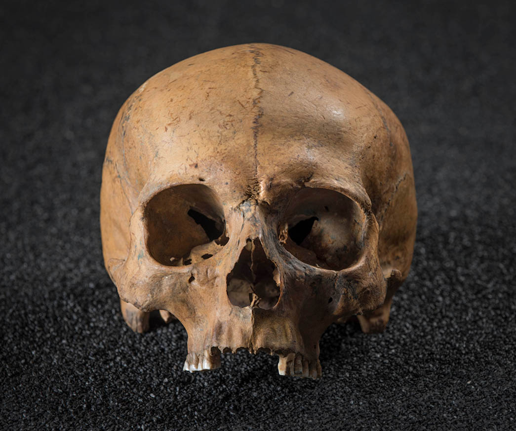 Skull of a man showing signs of a violent death