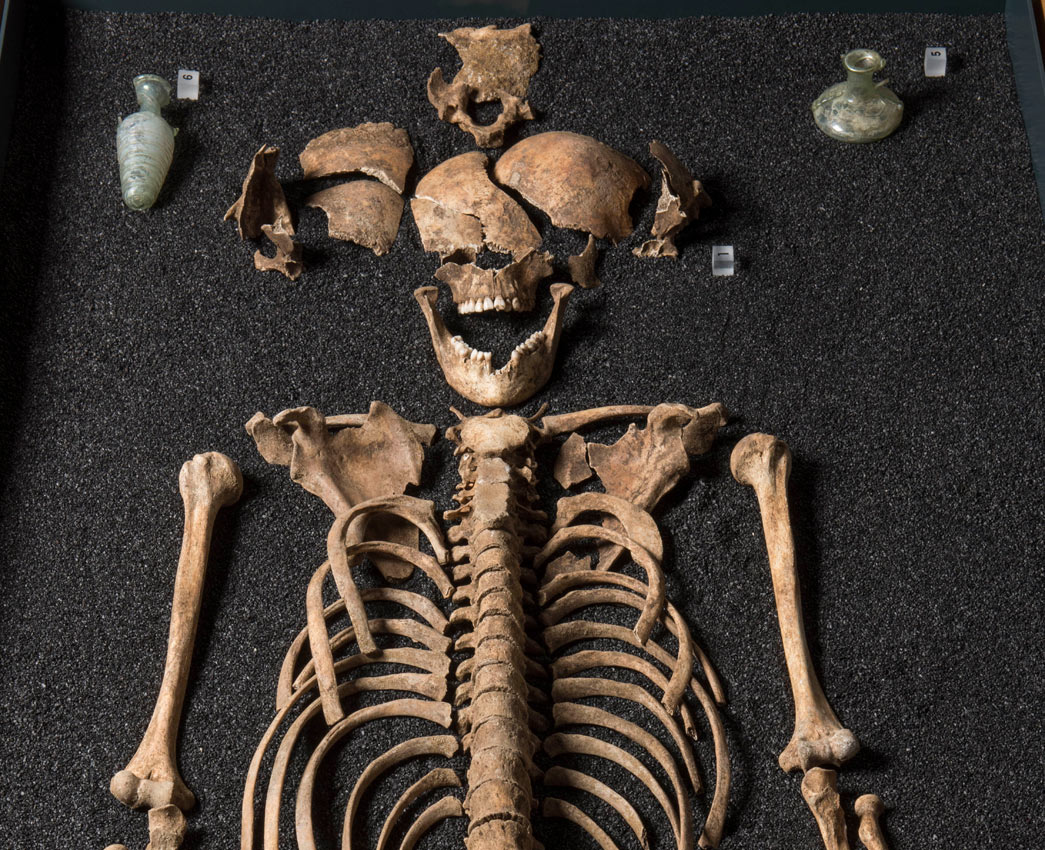 The broken skull of a girl who died at the age of 14 in Roman London, along with two green glass perfume bottles buried with her.