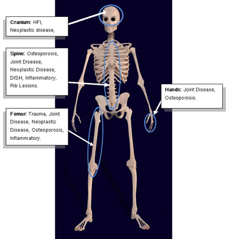 A model of a male human skeleton with labelled body parts.