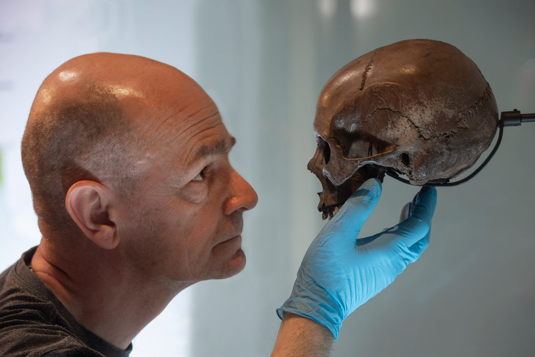 A Roman skull found in the Walbrook