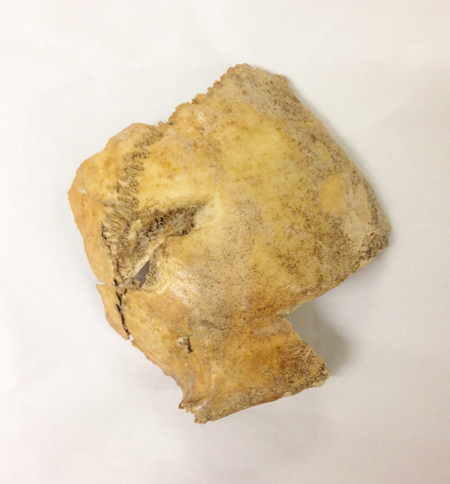 A fragment of skull showing signs of cranial trauma, excavated from the General Post Office site.